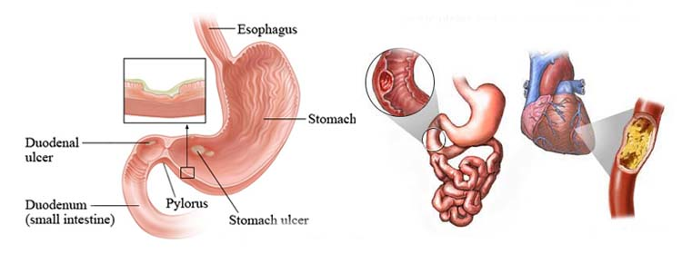 Stomach Cancer Treatment In Chennai Corrosive Injury Of Esophagus
